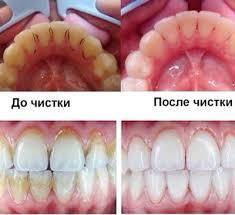 Зубной камень до и после