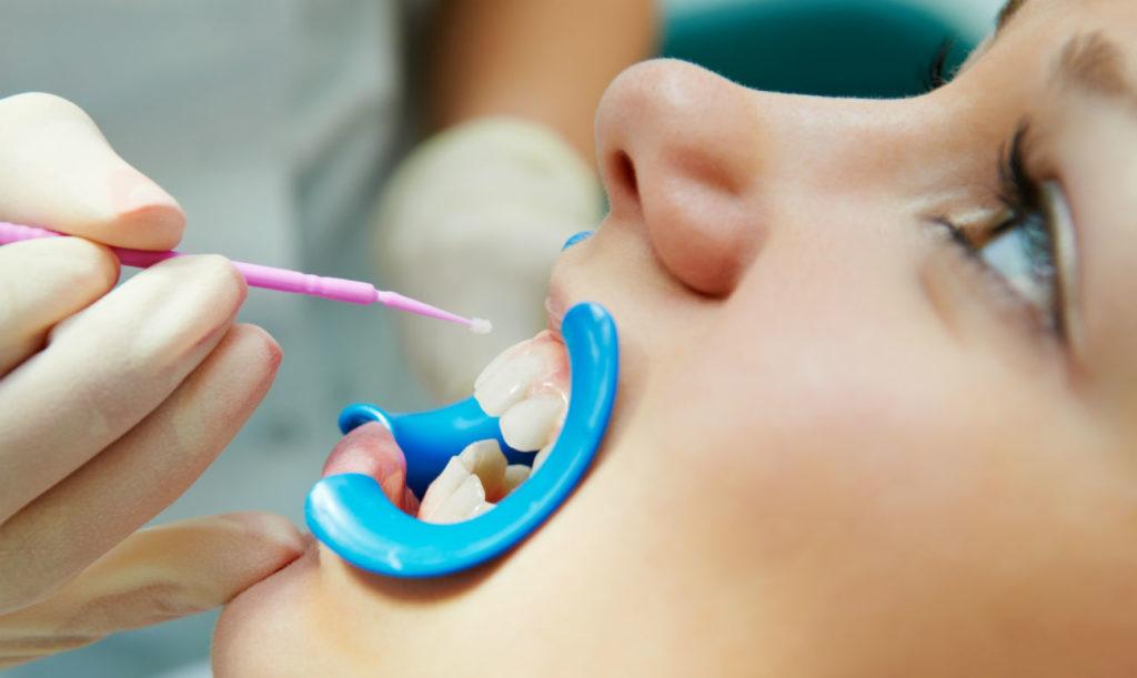 Нужно ли делать фторирование зубов