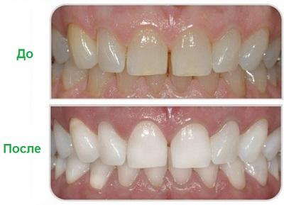лазерное отбеливание зубов До и после