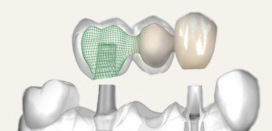 протезирование на имплантах 2