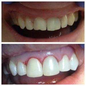 наращивание зубов статья 2