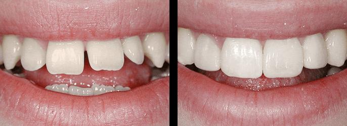 щель между зубами устранить
